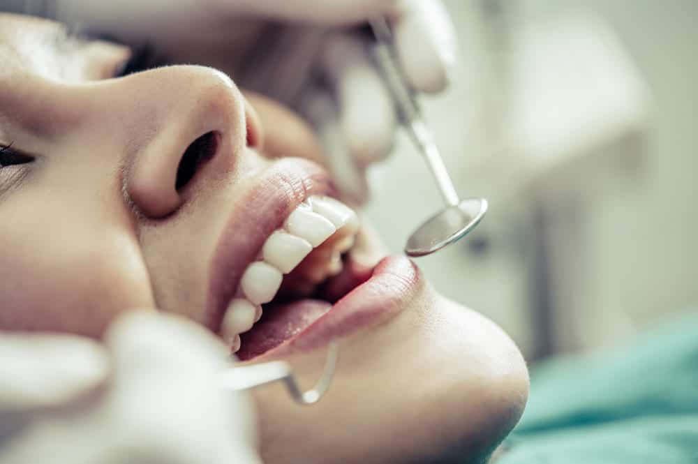 repérer les caries dentaires